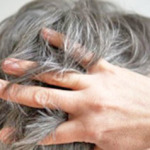 Ранняя седина: причины и лечение