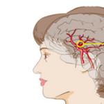 Чем опасны заболевания сосудов головного мозга?