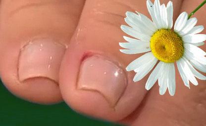 Средство от грибка на ногтях ног trosyd