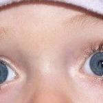 Наиболее частые болезни и травмы глаз у детей