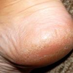 Трескается кожа на пятках: причины и лечение