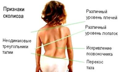 Центр бубновского лечение кифоза